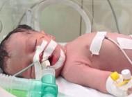 ΓΑΖΑ: ΠΕΘΑΝΕ ΤΟ ΜΩΡΟ-ΘΑΥΜΑ ΠΟΥ ΕΙΧΕ ΓΕΝΝΗΘΕΙ ΑΠΟ ΝΕΚΡΗ ΜΗΤΕΡΑ